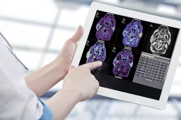 Olea Medical: Umelá inteligencia, ktorá zachraňuje životy